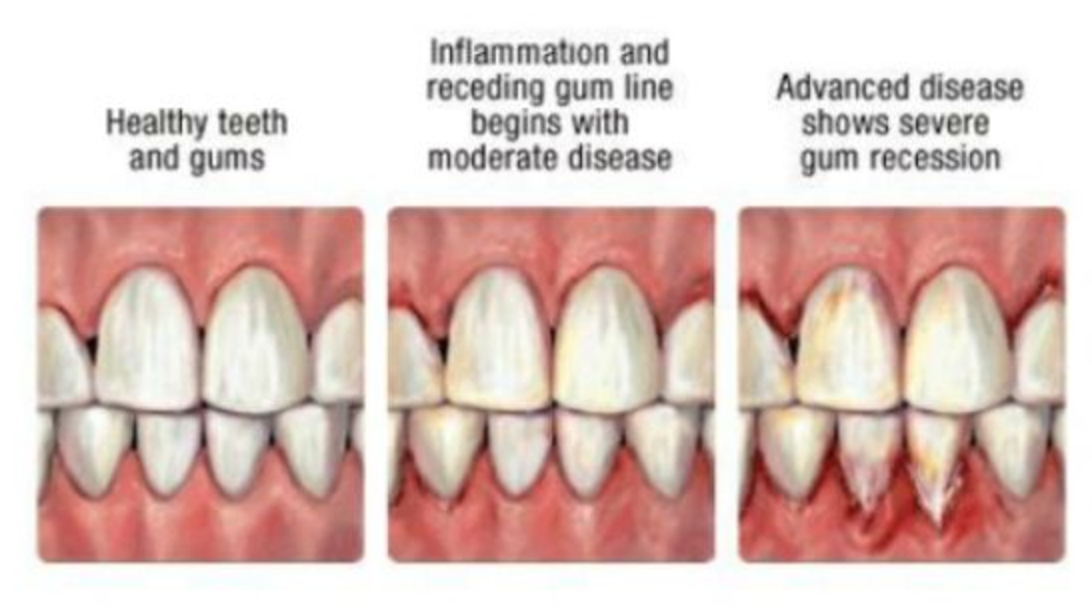 different types of gums