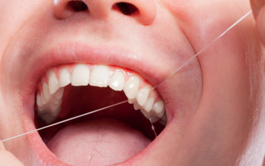 Why Flossing Is Important and Why It Should Be Done Every day