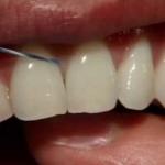 string floss between teeth