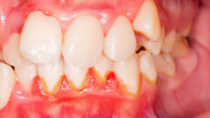 Flossing Myths: can't floss with severely bleeding gums