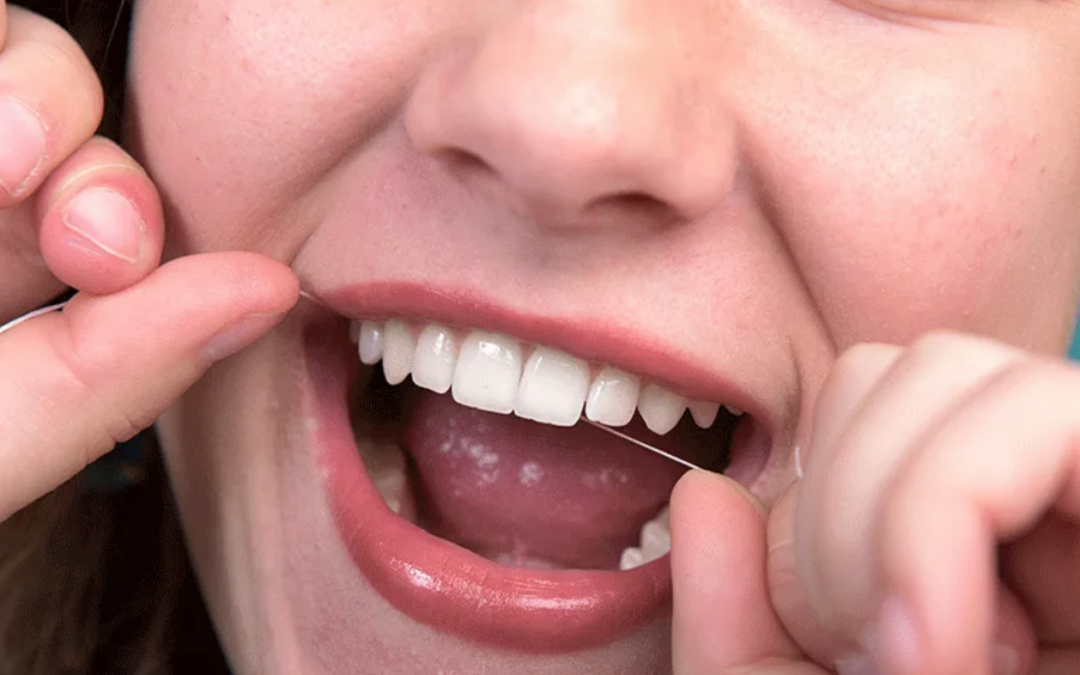 5 Flossing Myths That May Be Harming Your Dental Health