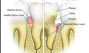Flossing Myths: healthy compared to non-healthy gums
