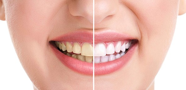 baking soda or apple cider vinegar are most popular for teeth strains