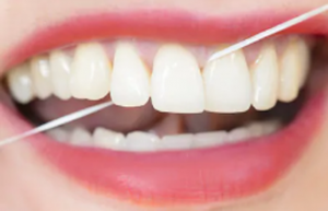 Can-Flossing-cause-receding-gums