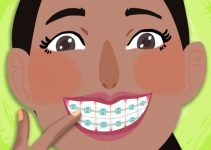 Gum disease with braces_ Truth be told 6x4