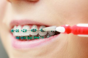 How to Use Water Flosser with Braces