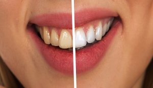 Can-Flossing-Remove-Tartar