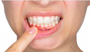 Can-flossing-reverse-gum-disease