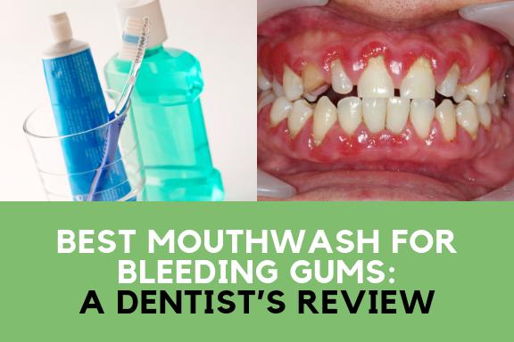 Best Mouthwash for Bleeding Gums: A Dentist's Review