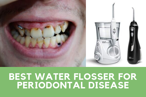 Best Water Flosser For Periodontal Disease