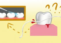 Bleeding when flossing one tooth: A sign of a problem?