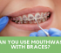 Can you use mouthwash with braces