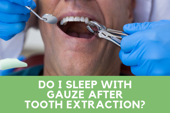 Do I sleep with guage after tooth extraction