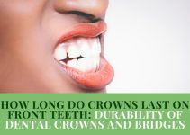 How Long Do Dental Crowns Last On Front Teeth